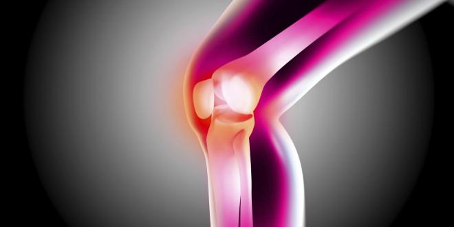 Artritis 1